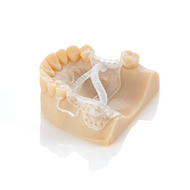 stratasys partial denture clear