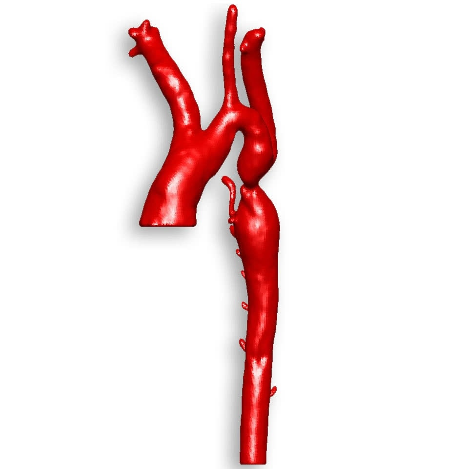Segment 3dprint Aortic Coarctation